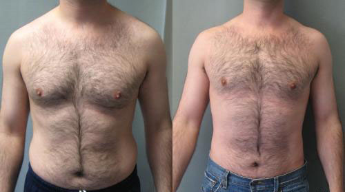Gynecomastia with Liposuction