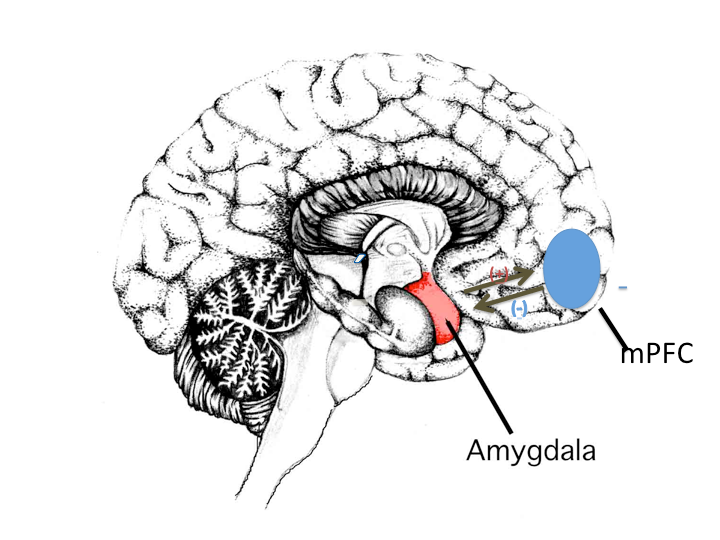 Brain, (viewed from side) showing mid-brain structures. The amygdala (marked in red), which is the first relay in the processing of stress stimuli, has tight and reciprocal connections to the medial prefrontal cortex (mPFC, marked in blue). Combined inhibitory and excitatory, so called top-down modulation, of the amygdala is necessary for normal stress coping. We believe that repetitive stress stimulation of the amygdala may lead to damage of the mPFC via targeted neurotransmitter release from the amygdla to mPFC, impaired stress modulation. This, in turn, causes further amygdala stimulation of the mPFC, leading to a cortical thinning in this region (as shown in figure 1), as well as the described cognitive symptoms.