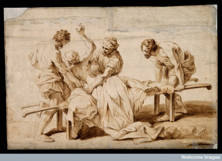 An epileptic or sick person having a fit on a stretcher, two men try to restrain him. Ink drawing attributed J. Jouvenet.  CC BY 4.0 via Wellcome Library, London.