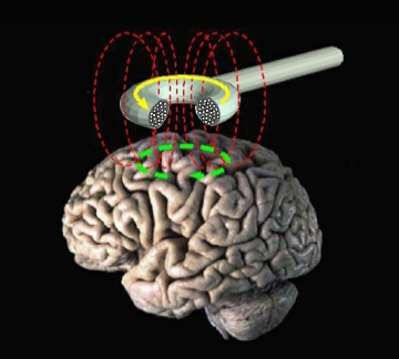 Transcranial magnetic stimulation by Eric Wassermann, M.D. Public domain via Wikimedia Commons.