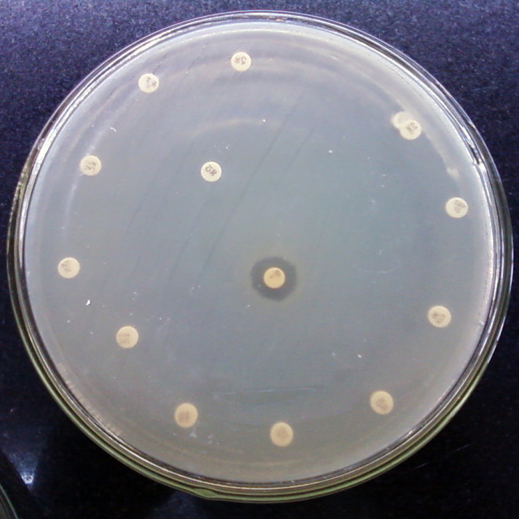 Antibiotic_resistant_bacteria