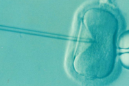 IVF under a microscope